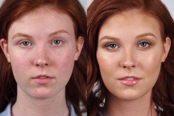 Maren-before-after